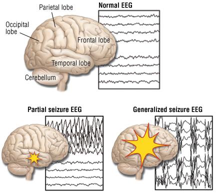 Epilepsy understood